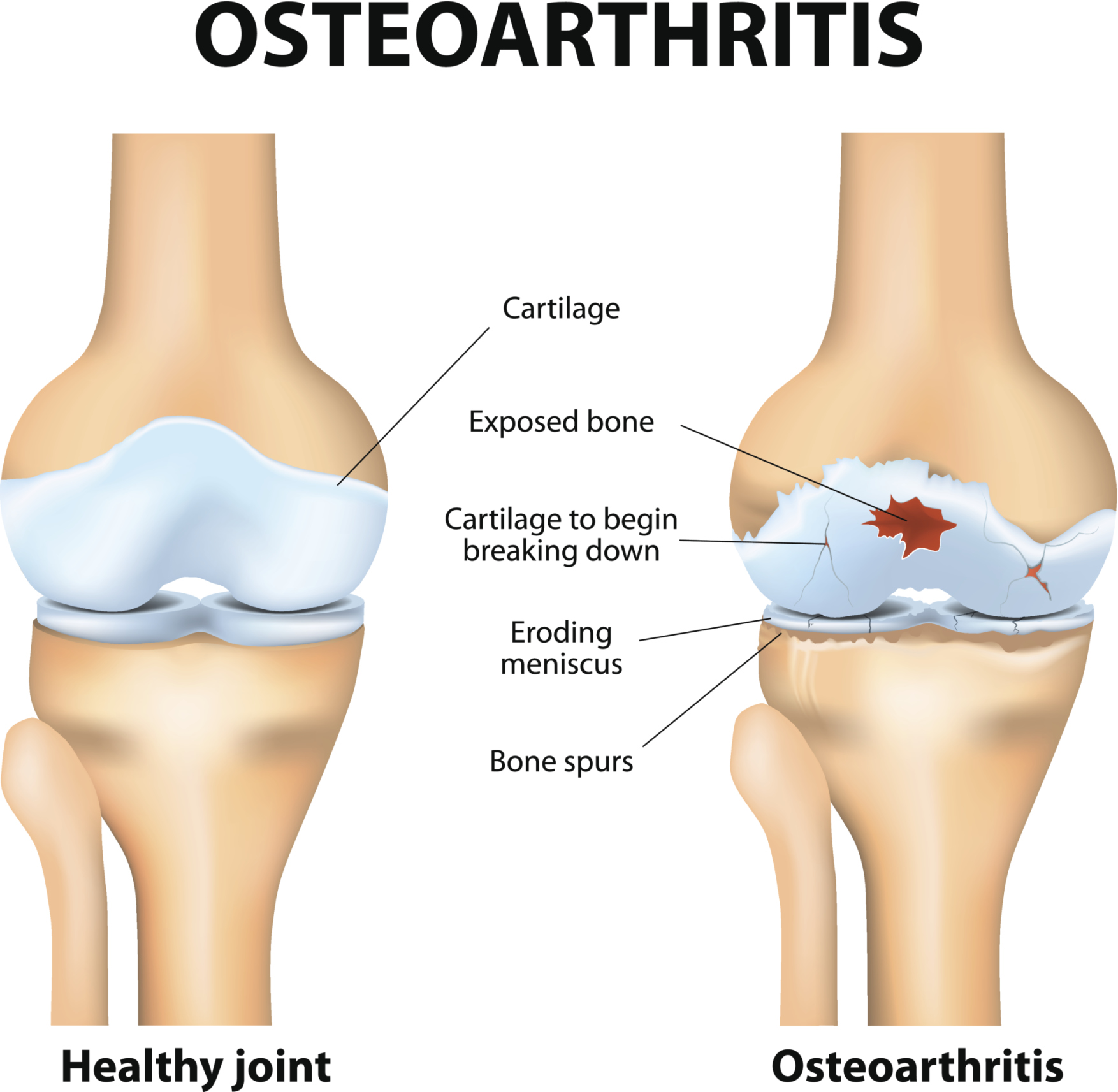 arthritis-doctor-orange-county-newport-beach